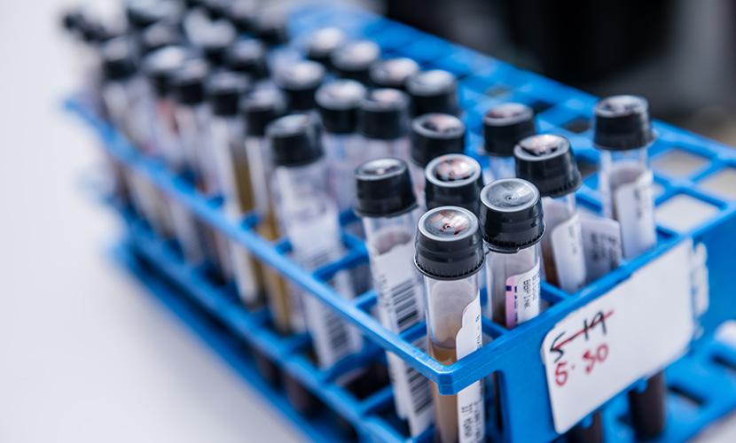 test tubes in blue rack